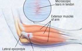Tennis Elbow/Lateral epicondylitis