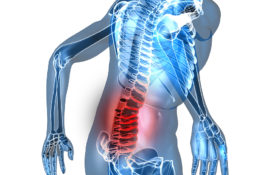 Chronic Pain Rehab concepts/back pain